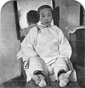 A Chinese ladies mangled feet.